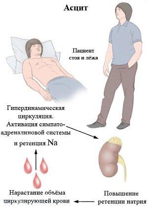 Анализ билирубина при циррозе печени