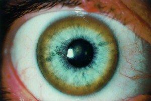 болезнь коновалова вильсона фото