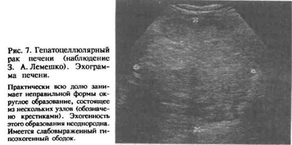 Препараты железа при циррозе печени